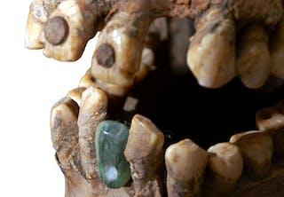 Gamle tænder