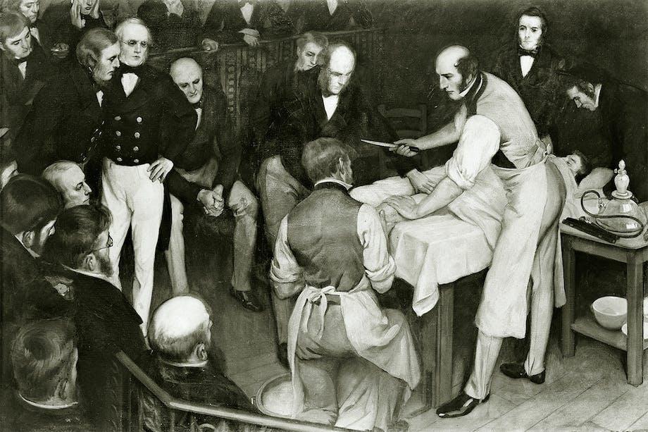Teckning av kirurgen Robert Liston i färd med att utföra en amputation. 1830-tal.
