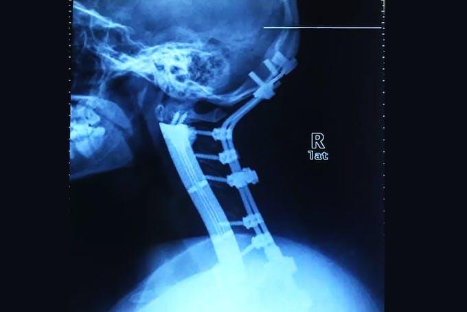 Røntgenbillede