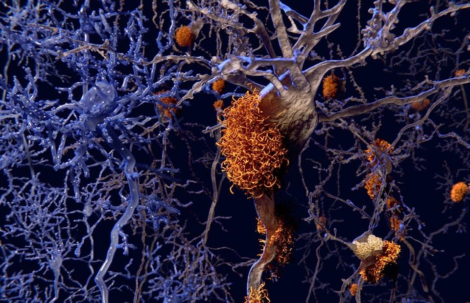 Alzheimerin