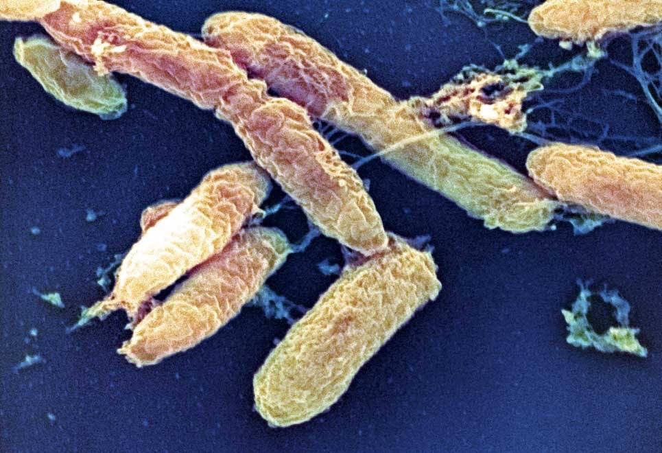 Epidemi - pest
