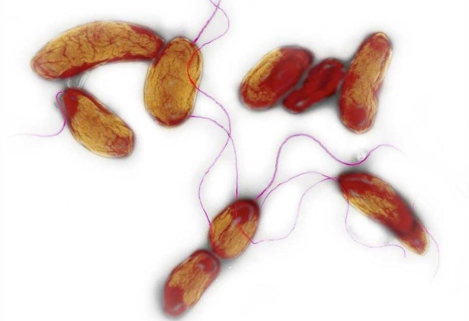 Kolera epidemi