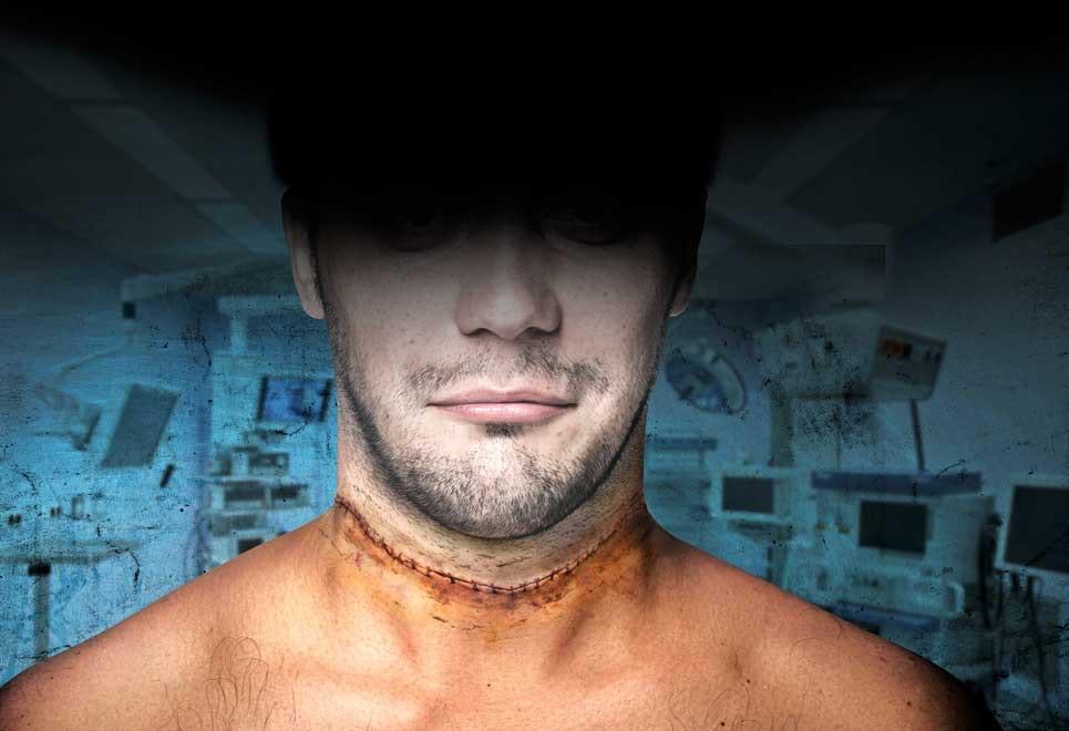 transplantation af hoved