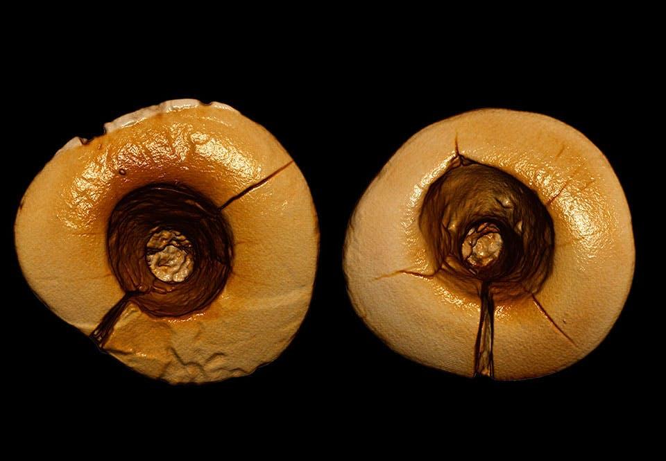Tandlæge i istiden