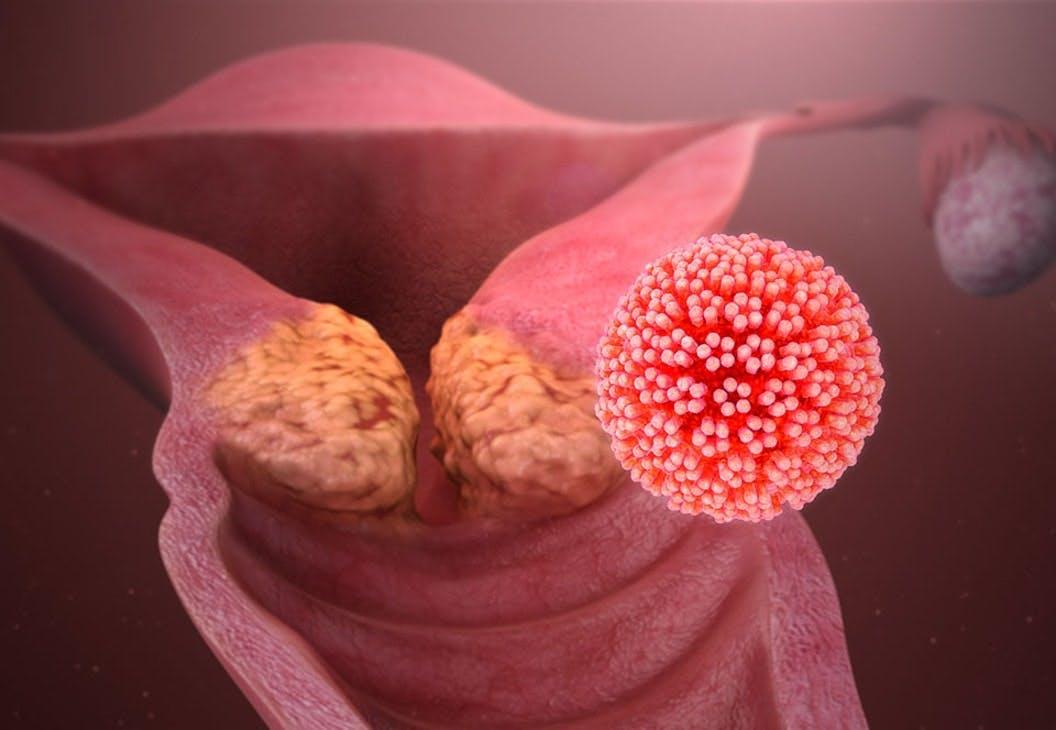HPV-virus angriber livmoderen
