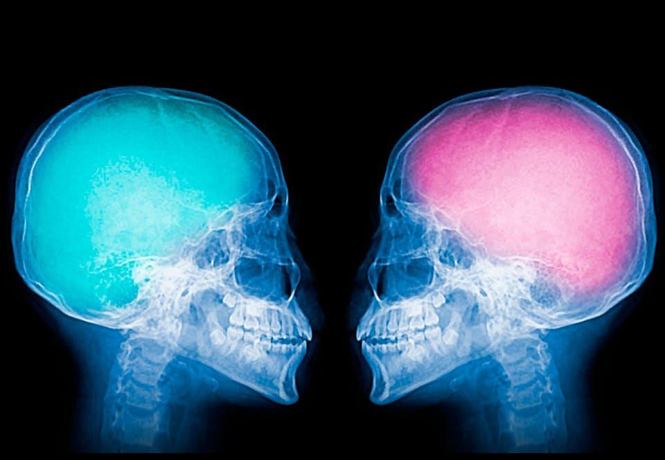 d57cf13c8bb Forsker: Mænd har større hjerner og højere IQ end kvinder