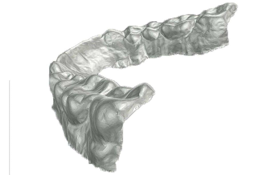 smärtfritt tandläkarbesök