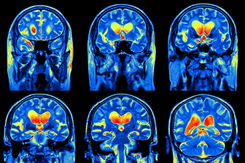Hjernekræft