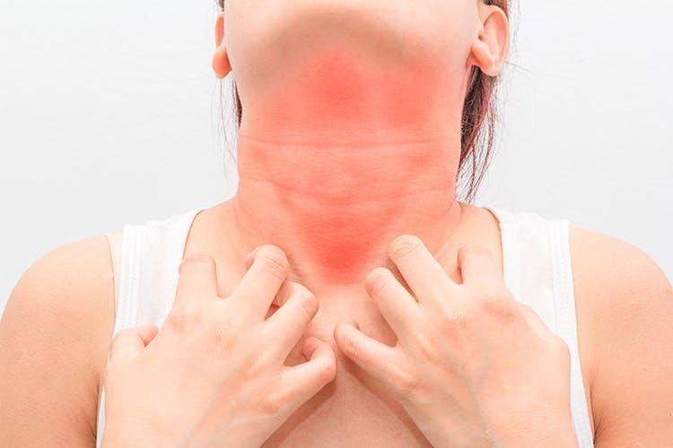 allergisk mot spermier symptom