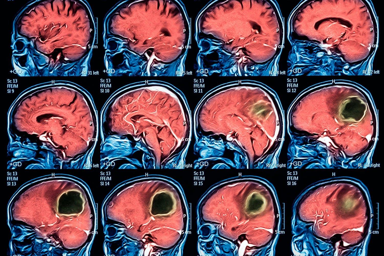 aivokasvain uusi ase