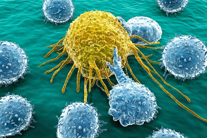 cancer och stress