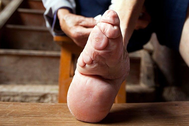 Sidotut jalat
