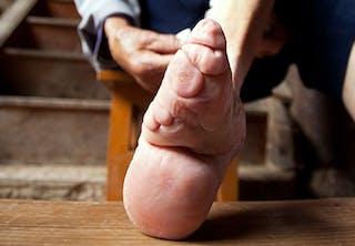 Insnörade fötter