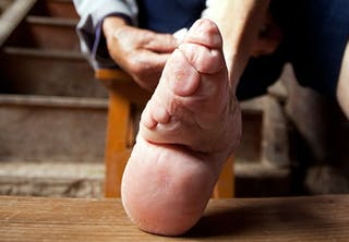 Snørede fødder
