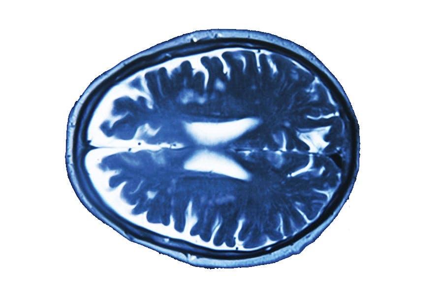 hjernescan
