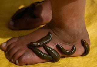 Igler suger blod på fod, gul baggrund