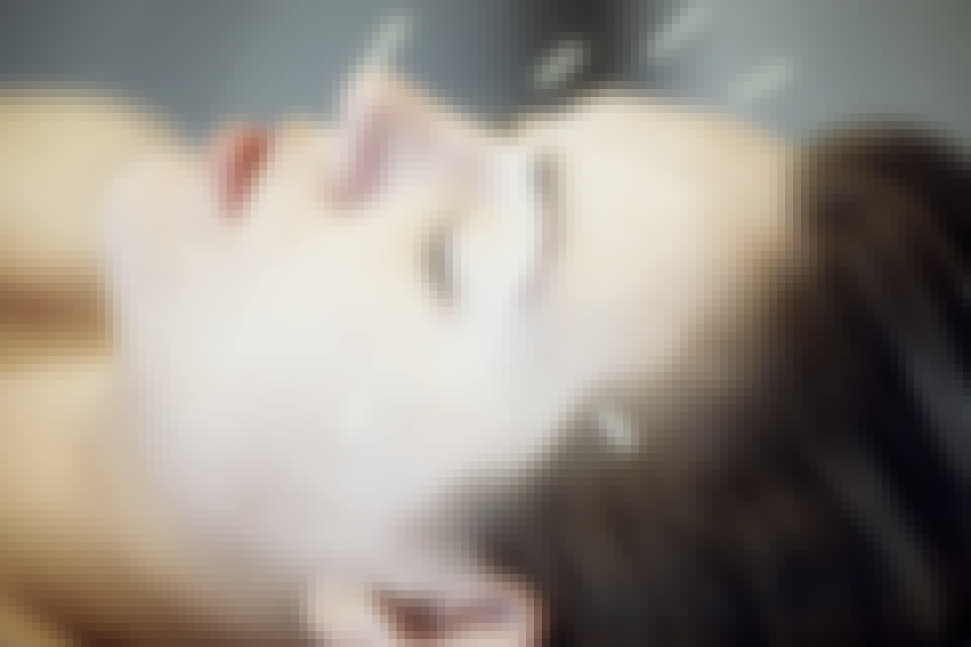 Woman with acupunctur needles