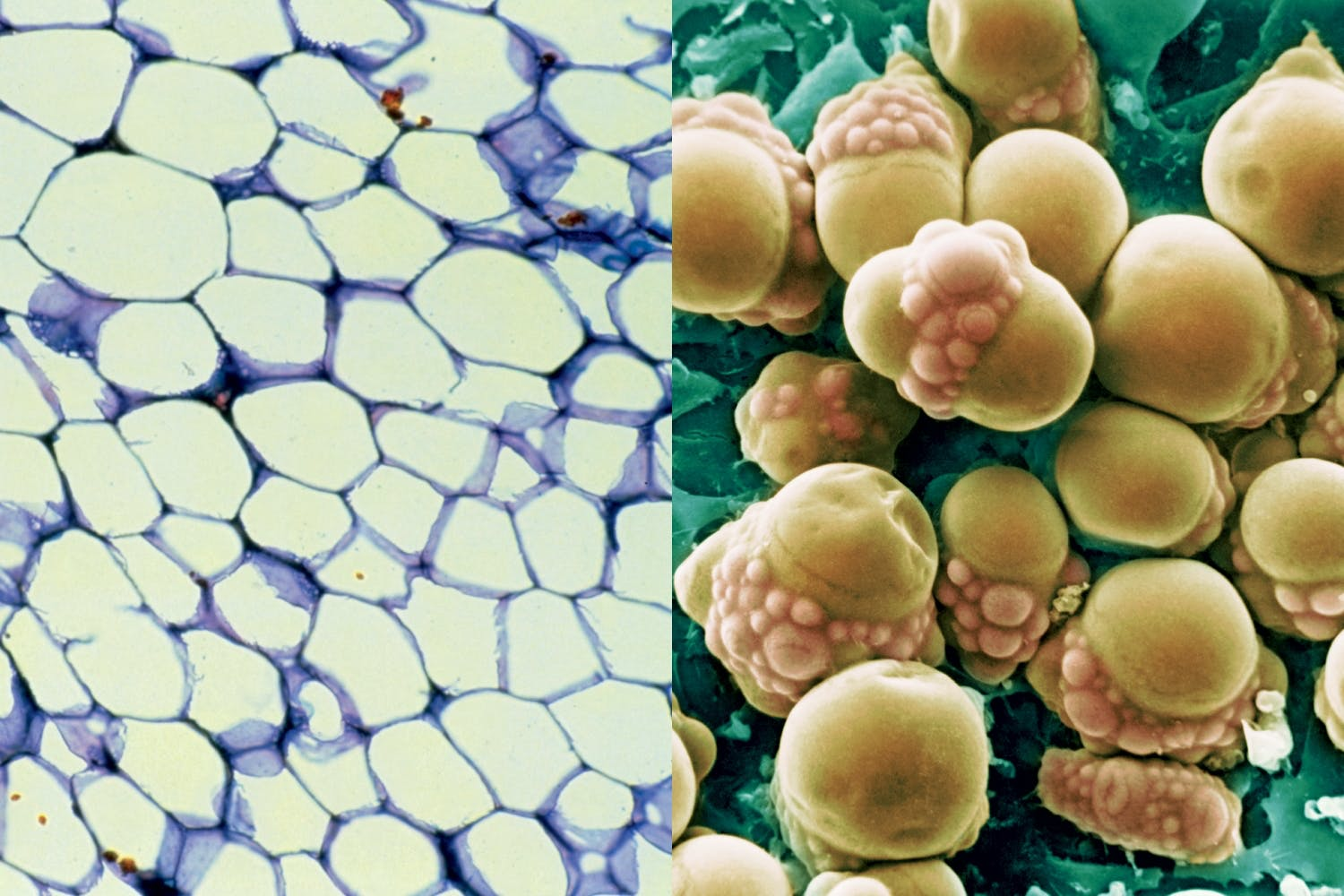 white and brown fat cells
