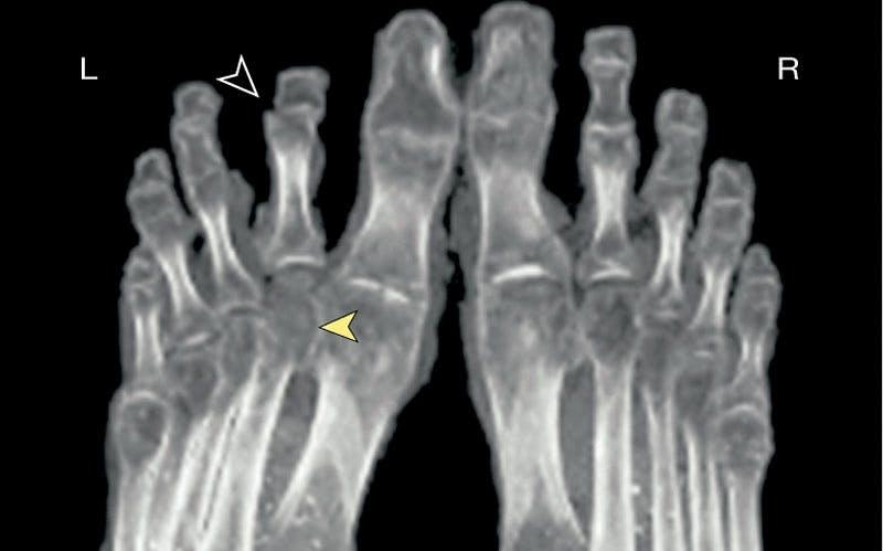 Tutankhamon's feet
