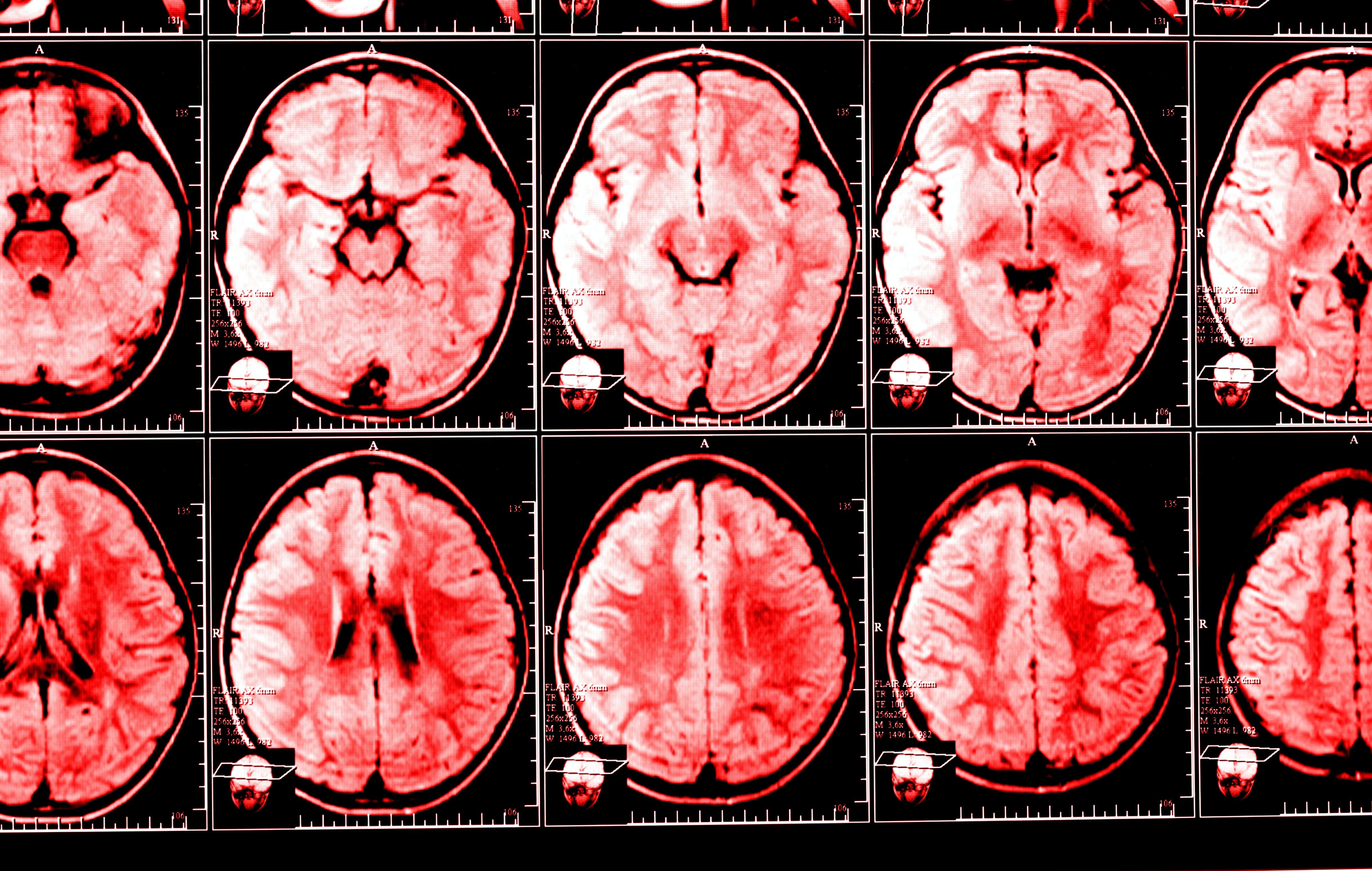 verhalen over de hersenen