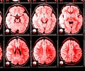 uskomuksia aivoista