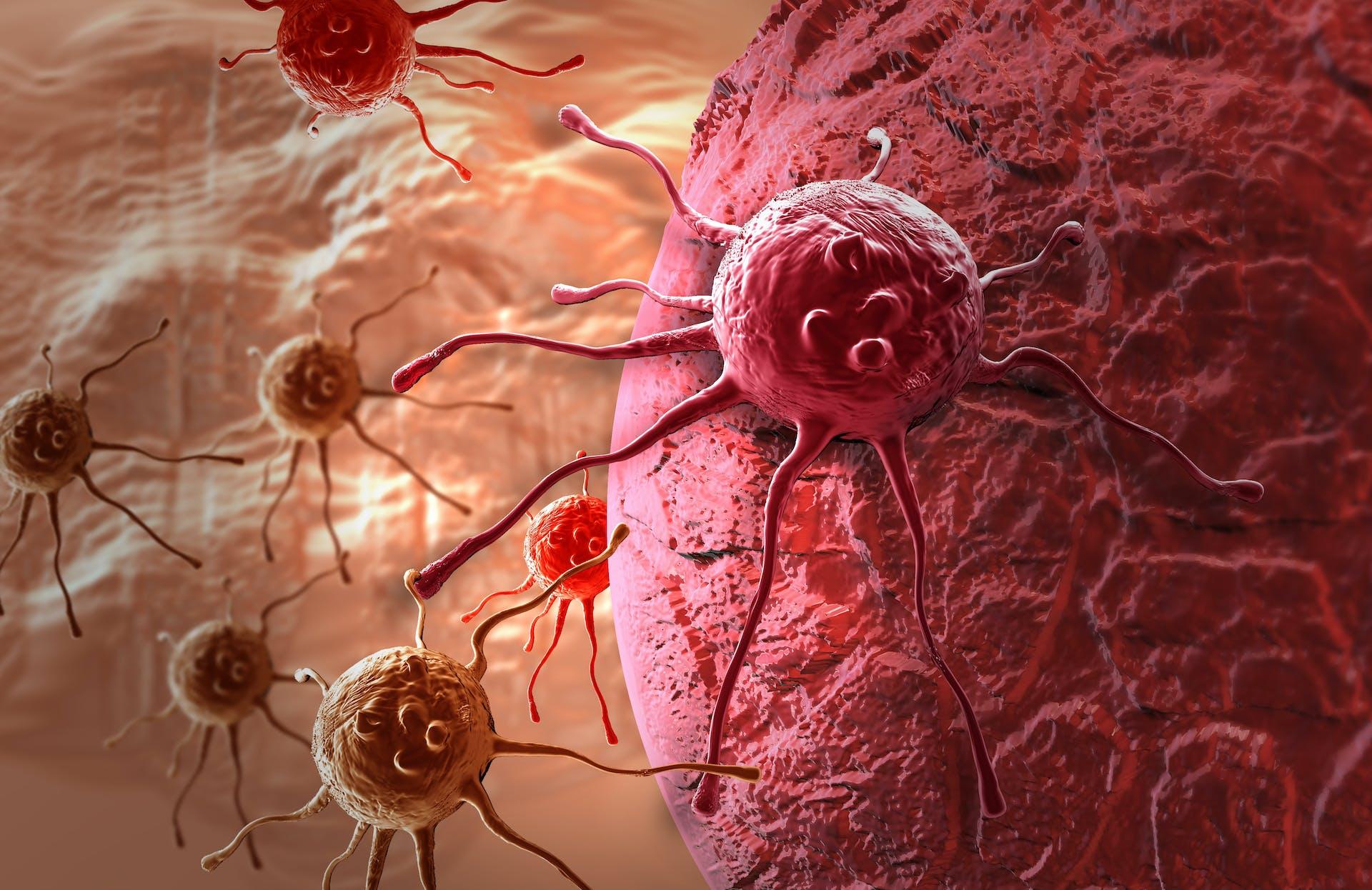 Brystkræft