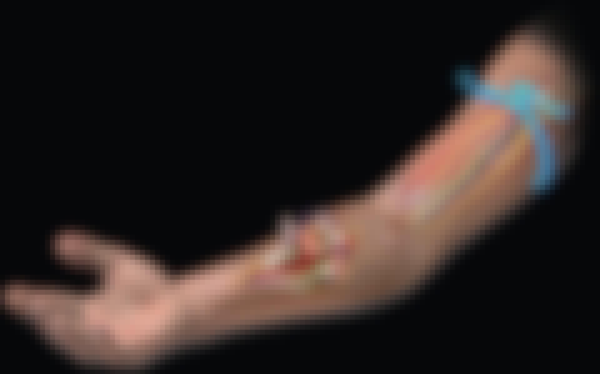 Käsivarsi –jumissa viisi päivää