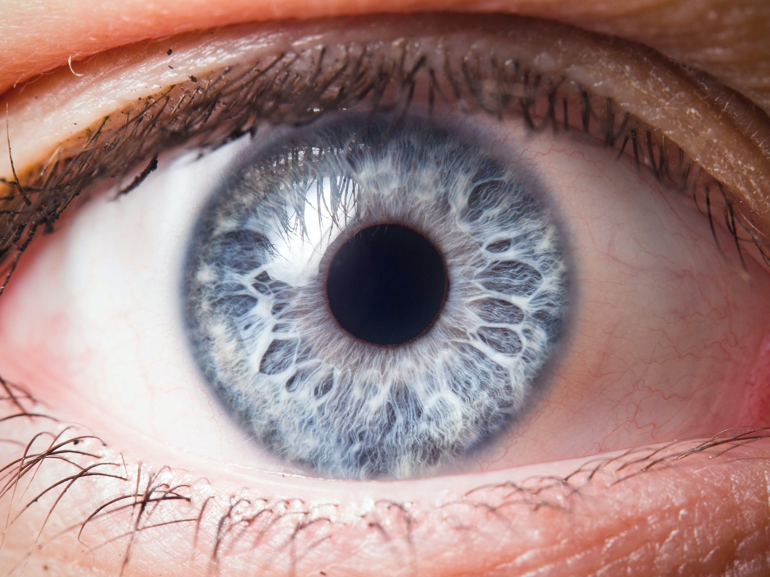 hur många har gröna ögon i världen