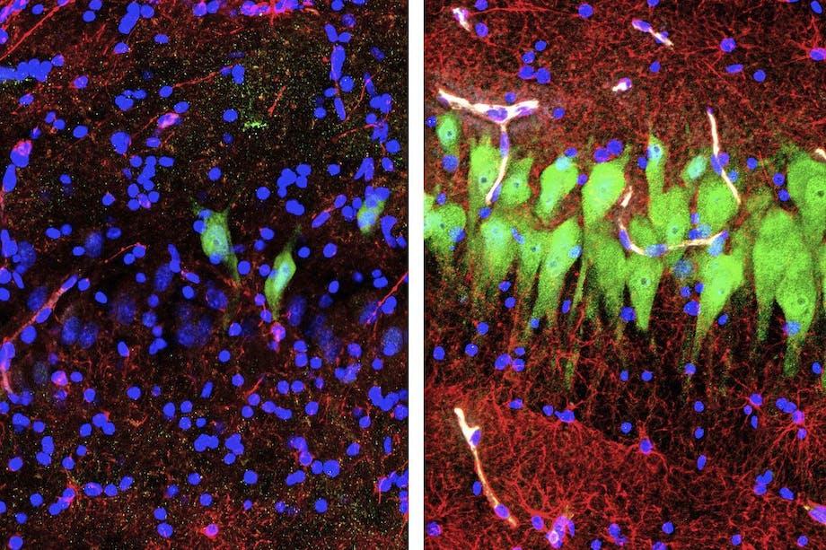 Hjerneceller (grønne) kan genaktiveres mange timer efter død