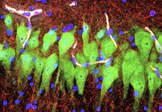 Levende celler i hjernen