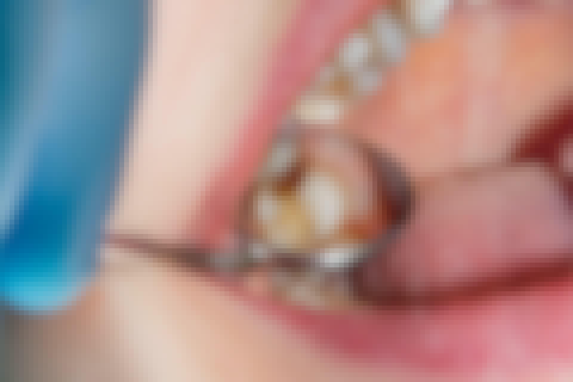 Nogle mennesker får lettere huller i tænderne end andre pga. ringere spytproduktion.