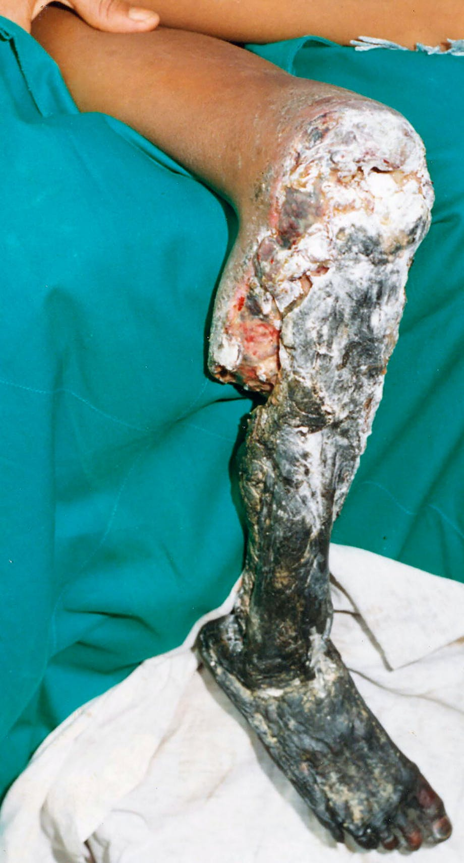 Vævsdød på bein