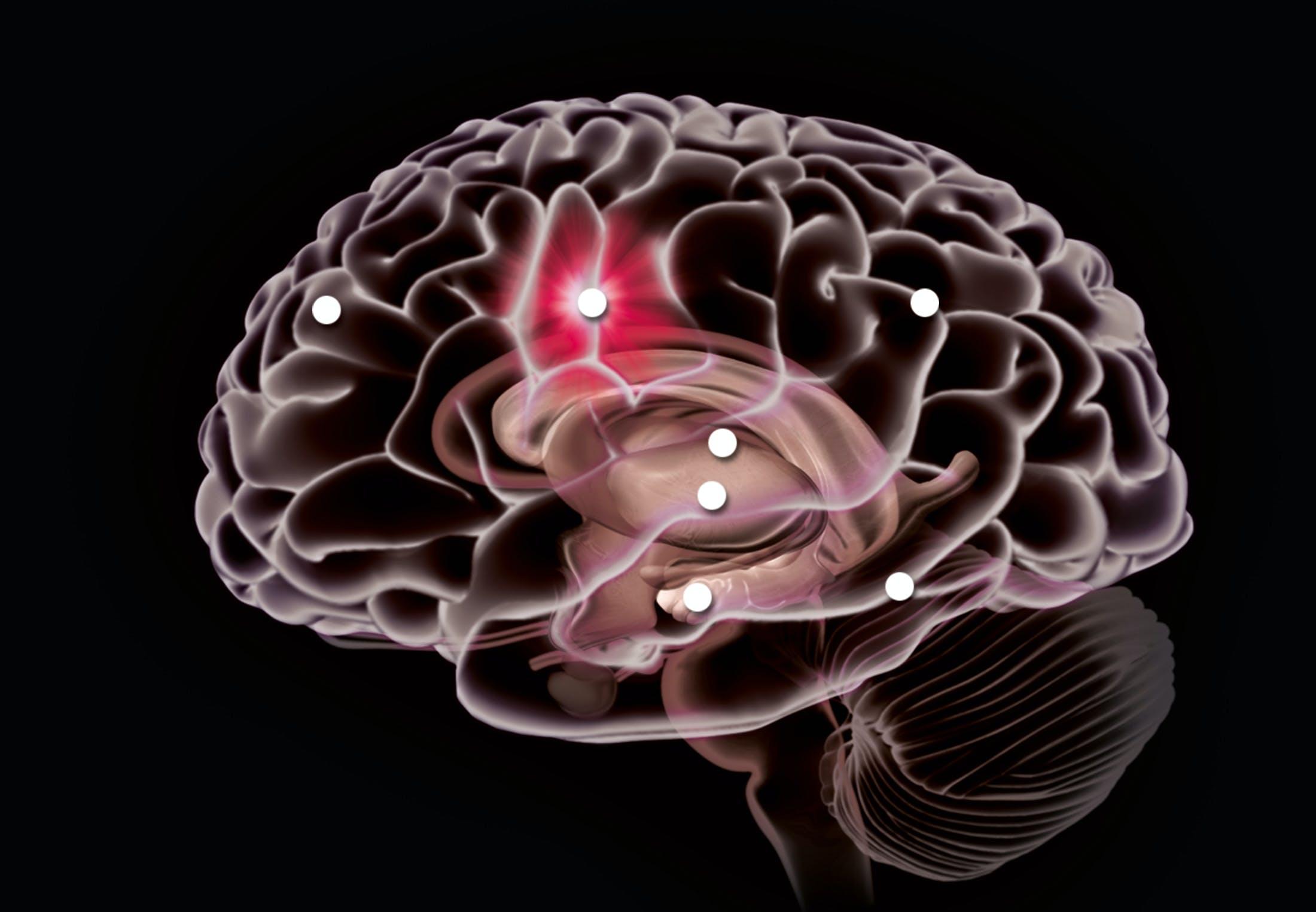 En skizofren hjerne har anderledes kommunikationsmønstre end en rask hjerne.