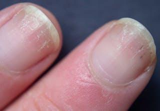 Spruckna naglar