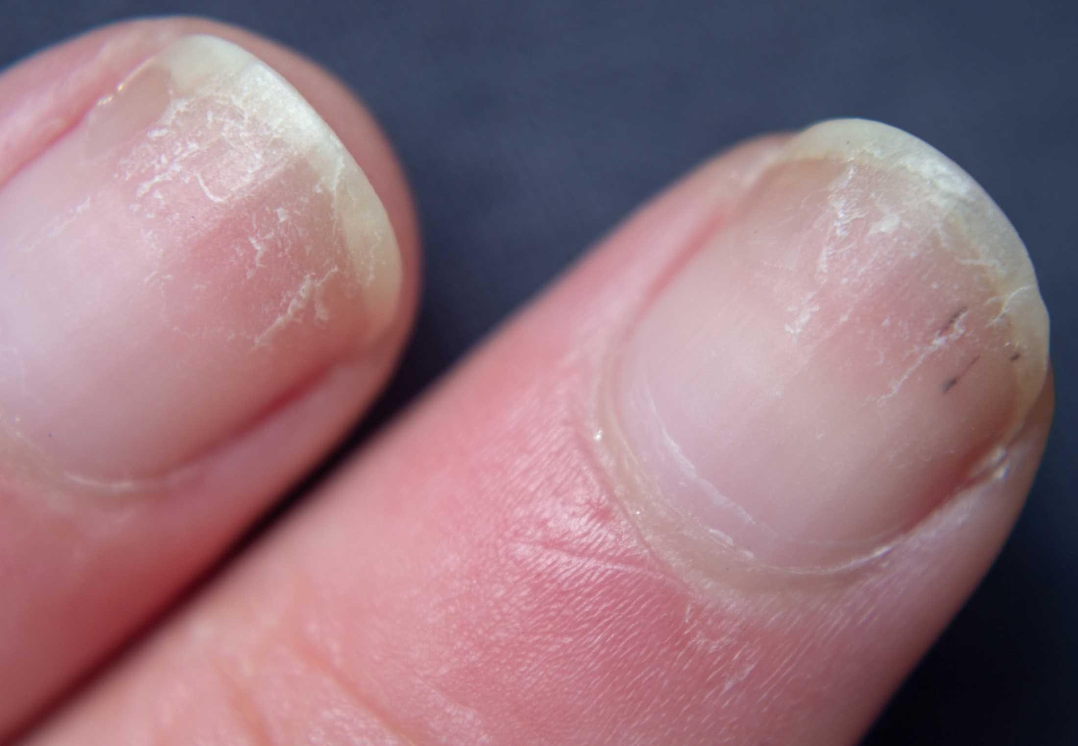 naglar som skivar sig brist