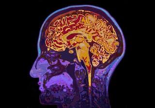 MRI-skanning af hjerne