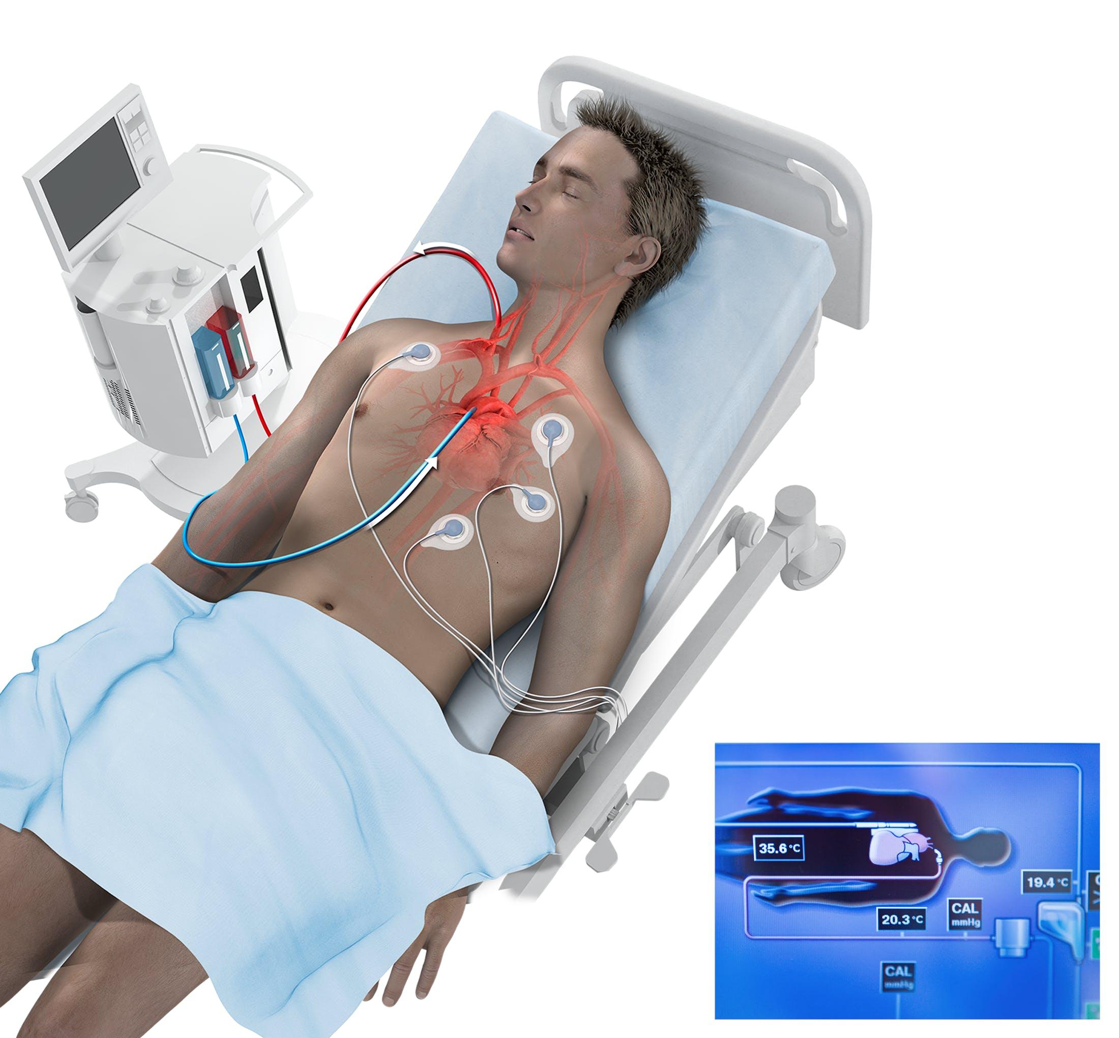 Nedkøling patient