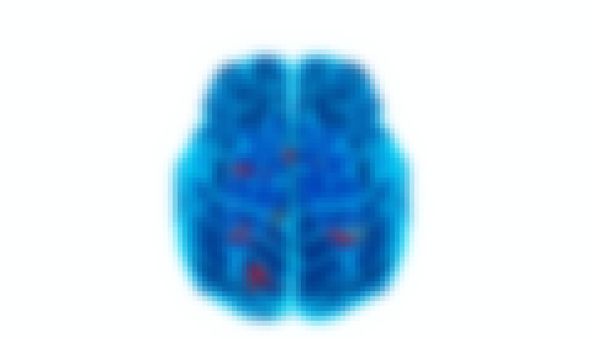hjerneskanning