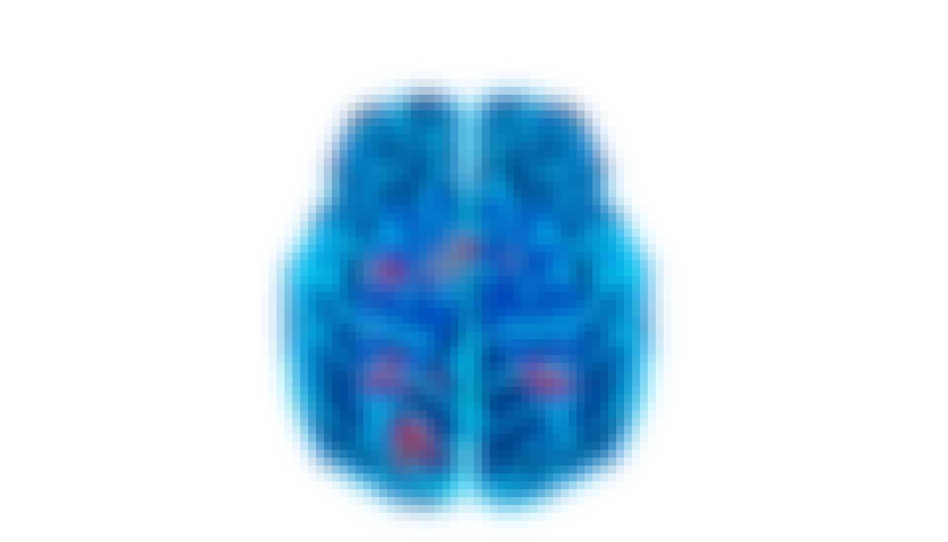 aivoskannaus