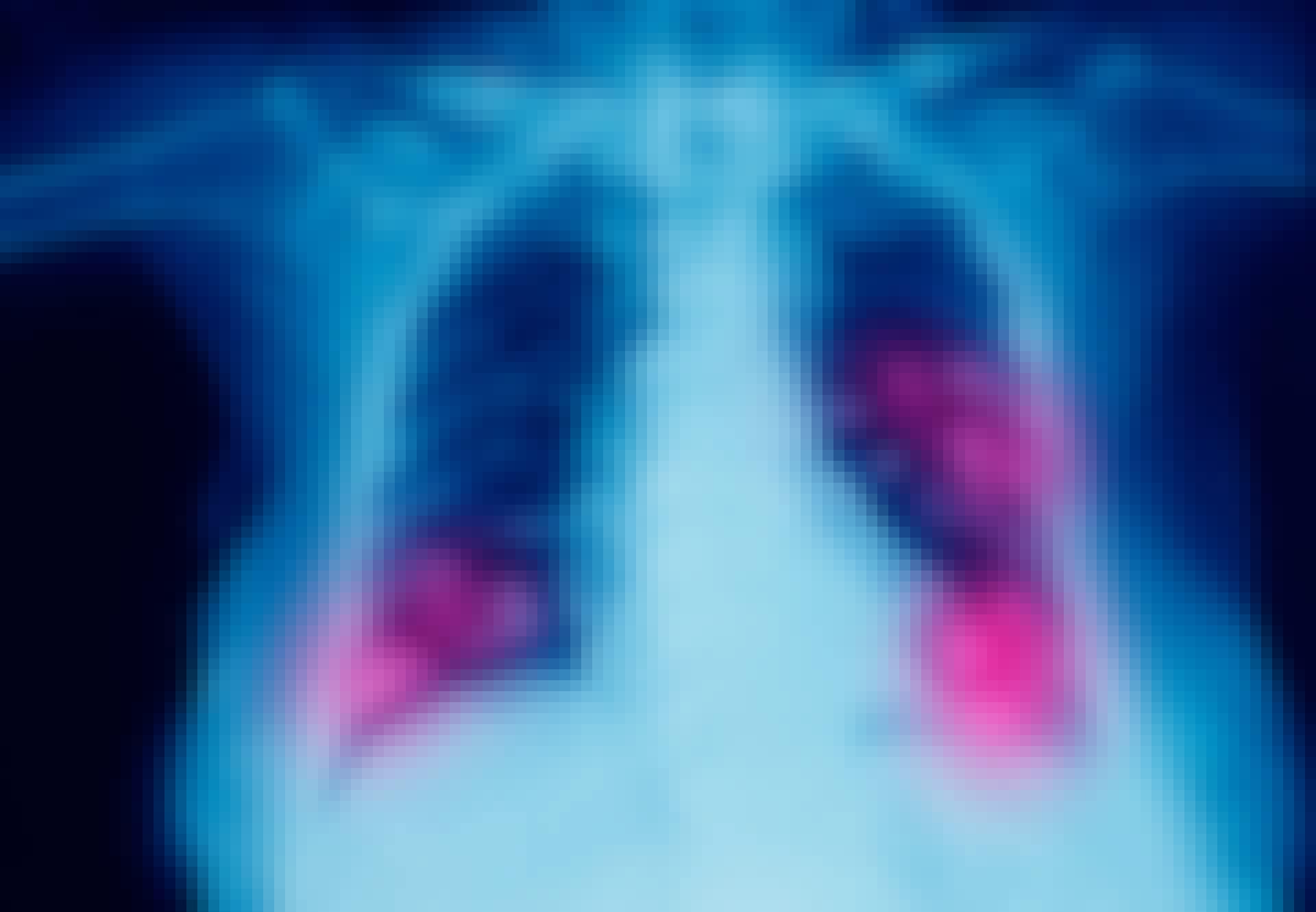 Røntgenbillede - radon kan gøre syg