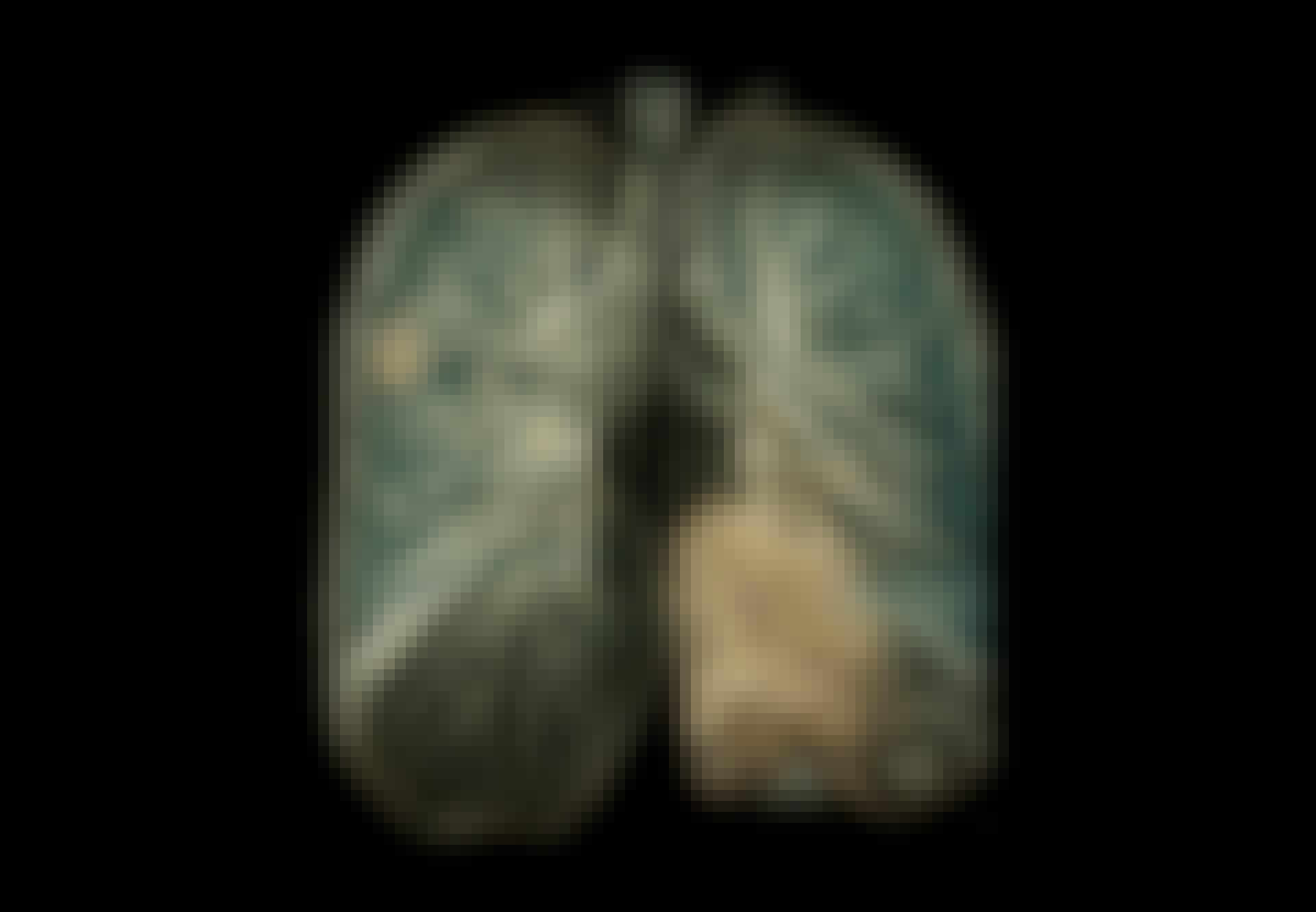 Senfølger - Scanning af lunger med Covid-19