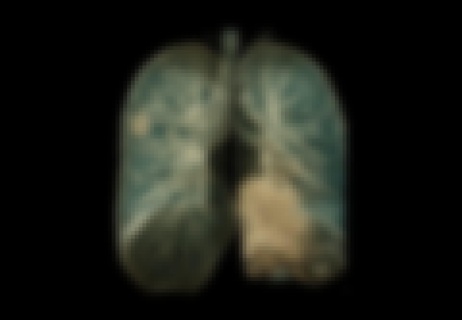 Myöhäisoireet - koronapotilaan keuhkot