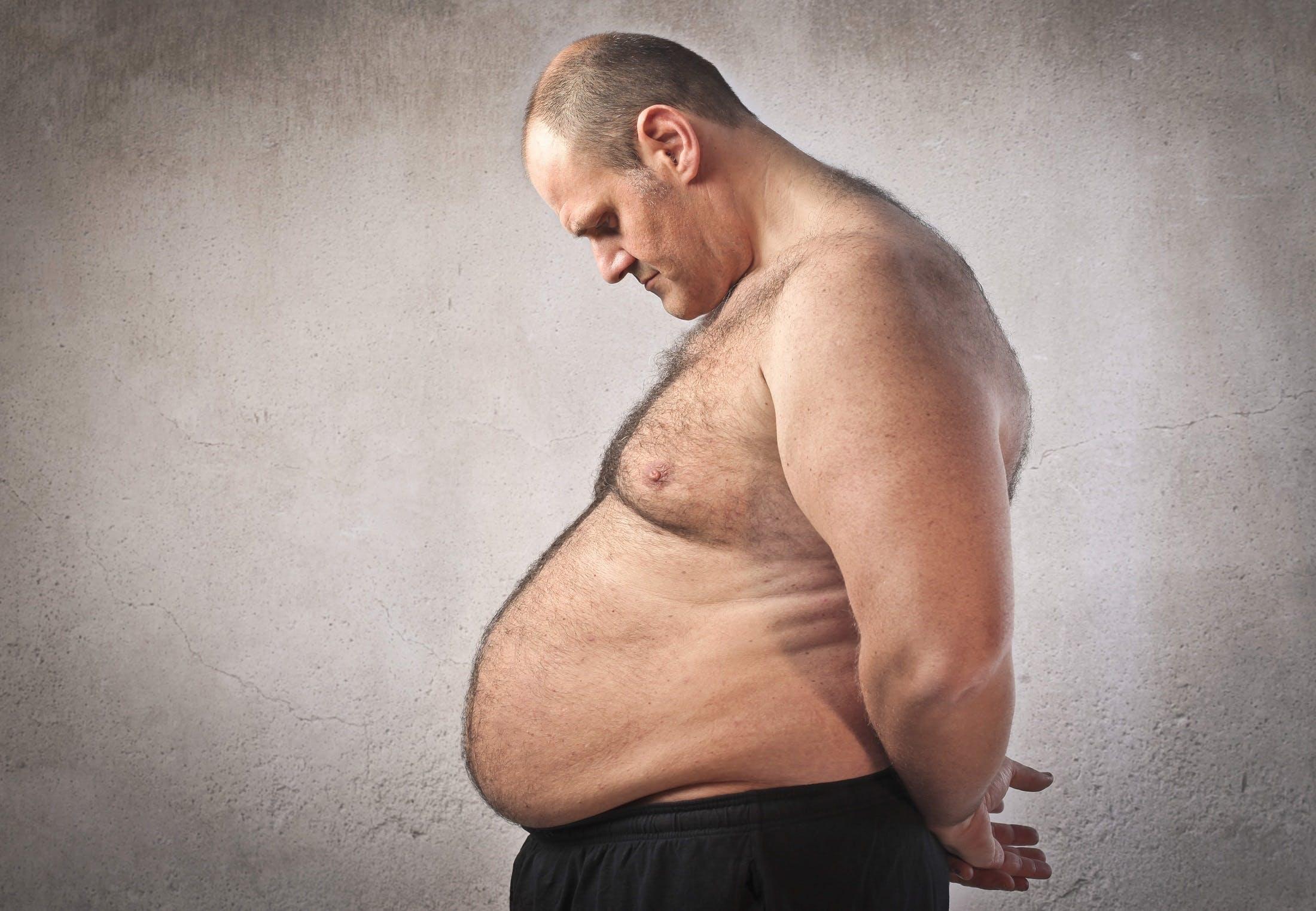 Forskning: Avstängd gen kan stoppa fetma